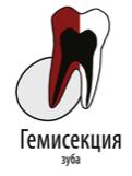 гемисекция